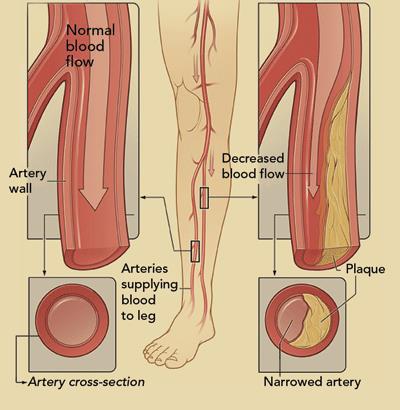 peripheral arterial