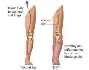 Comparison: a normal leg vs one with DVT