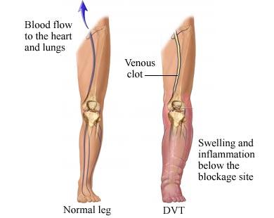La trombosi di gemorroidalny esterno annoda metodi di trattamento