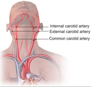 cartiods diseas Learn about carotid artery disease (stenosis) from the no 1-ranked heart program in the united states, cleveland clinic find out about carotid artery disease.